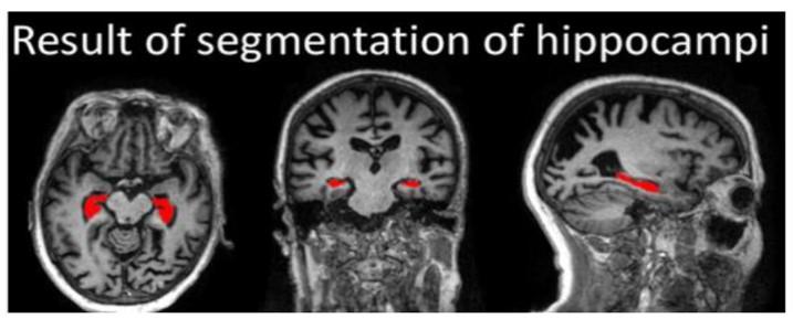 腦部三種切面